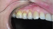 Главная причина клиновидного дефекта зубов - нарушение прикуса